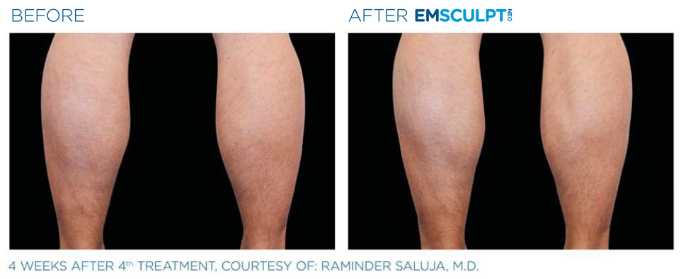 before and after emsculpt calfs