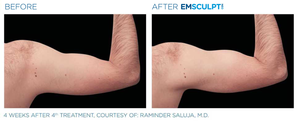 before and after emsculpt bicep