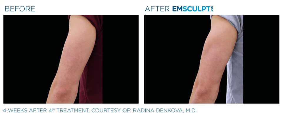 before and after emsculpt back of arm