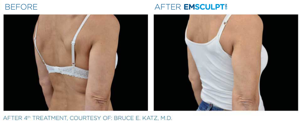 before and after emsculpt back