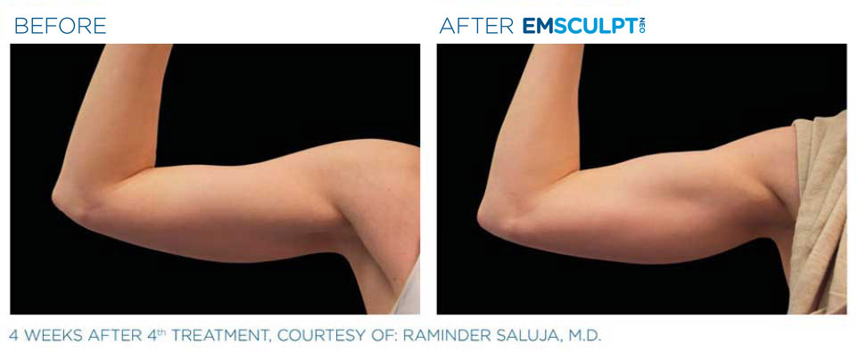 Before and after emsculpt arm