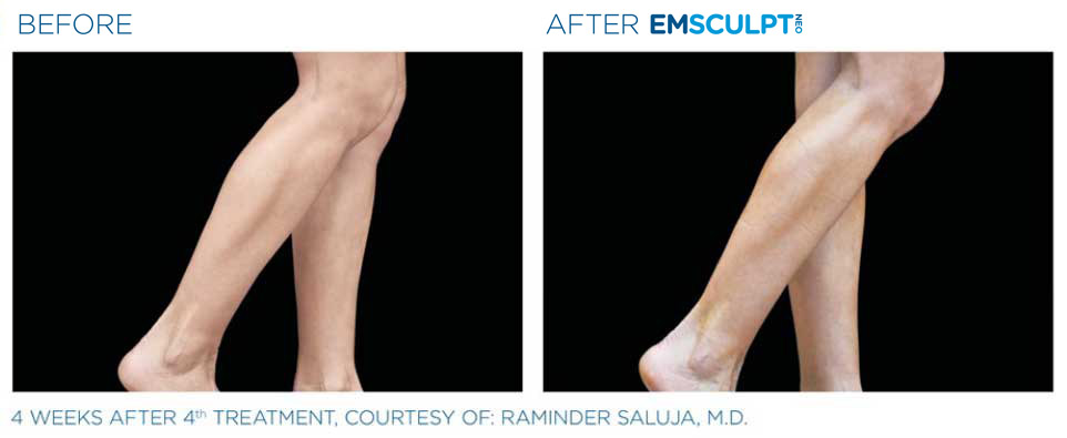 before and after emsculpt leg
