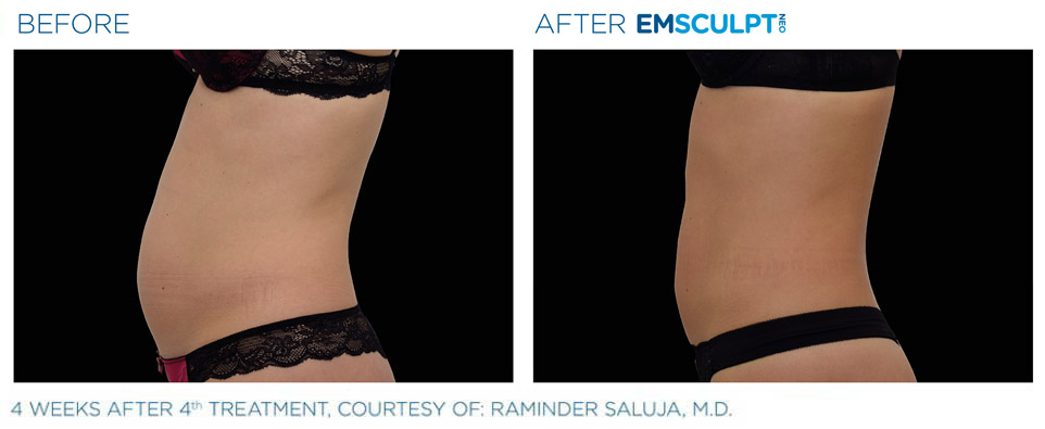 Before and after Emsculpt abdomen