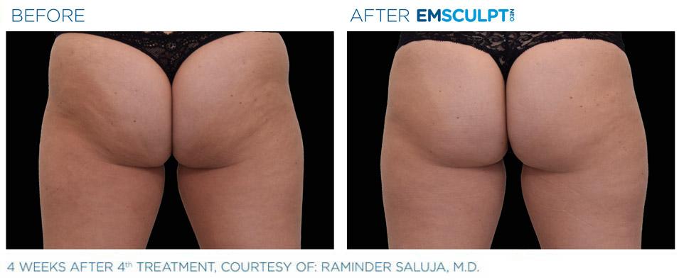 before and after emsculpt butt