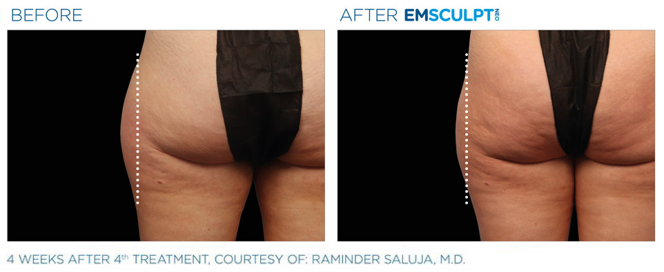 before and after emsculpt thigh