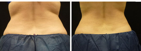 Coolsculpting results on back