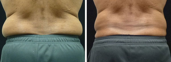 coolsculpting results on back and sides