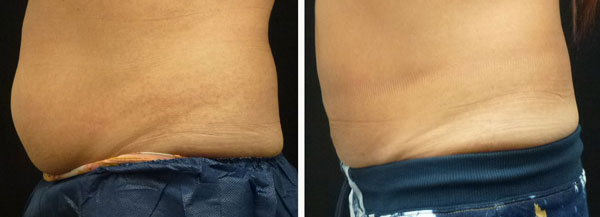coolsculpting results on sides