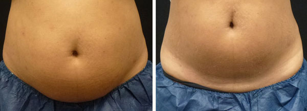 coolsculpting results on belly