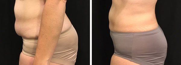 coolsculpting results on lower body