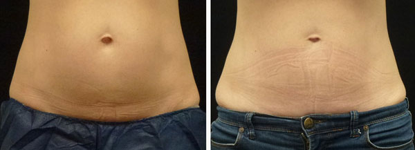 coolsculpting results on stomach