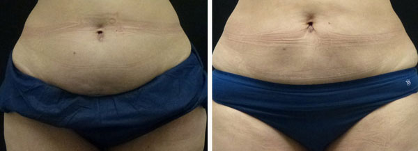 coolsculpting results on abdomen