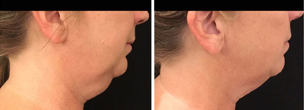 coolsculpting results on neck