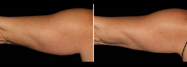 Coolsculpting results on an arm